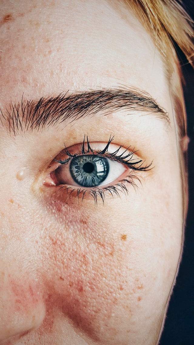 Problem Skin? Here's What To Do