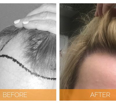 What Is Surgical Hair Restoration And How Does It Work?